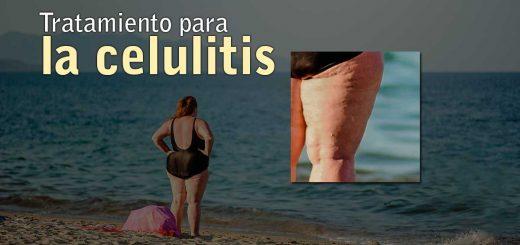 Tratamiento para la celulitis en toledo